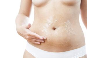 Come applicare la crema anticellulite
